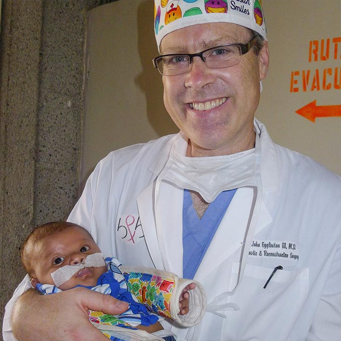 Dr. John Eggleston makes new smiles from a cleft lip with Austin Smiles in San Salvador
